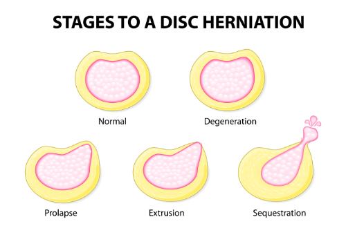 bulging disc herniated disc chiropractic