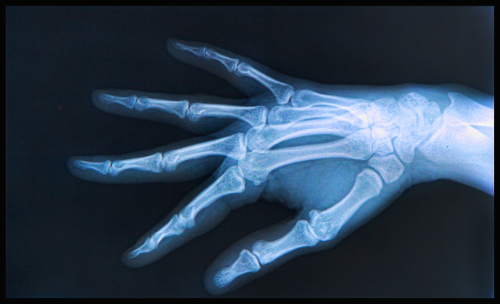 hand injuries and chiropractic